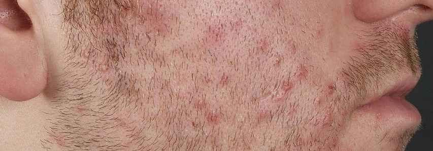 Воспаление волосяной луковицы картинка