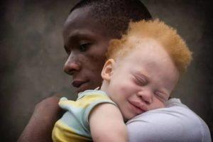 niger albinos