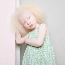 Кто такие альбиносы?