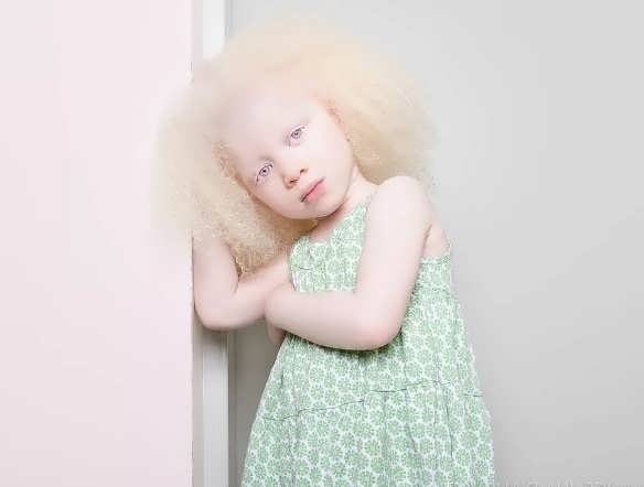 rebenok albinos